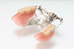 チタン床義歯1