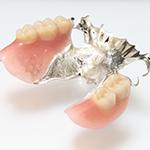 チタン義歯