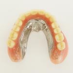無口蓋義歯