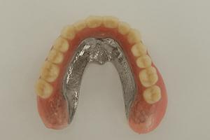 無口蓋義歯1