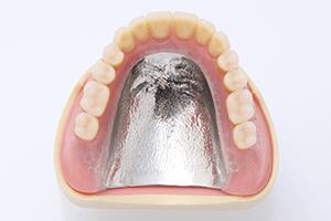 金属床義歯1