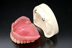 マグネット義歯1
